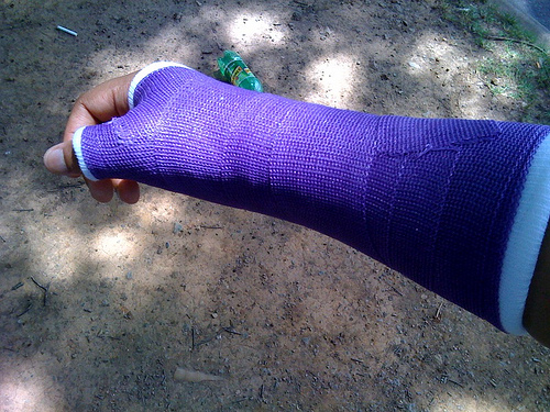 Cast in Purple